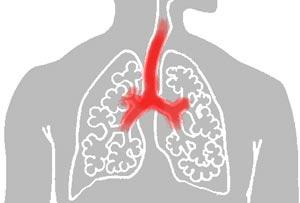comment guerir d'une bronchite